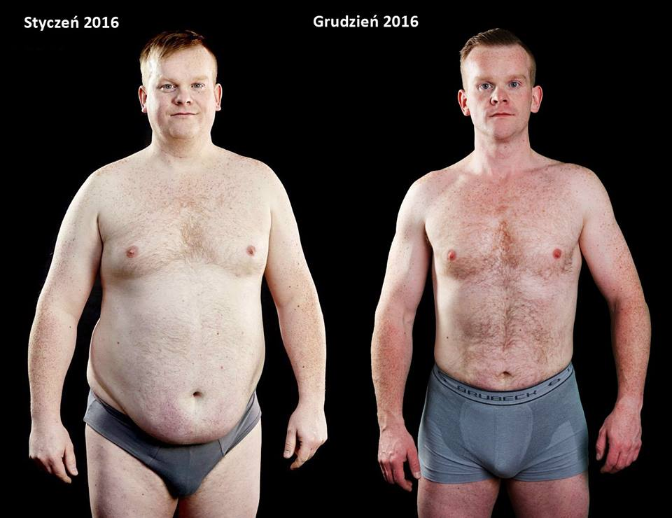 Olbrzymia otyłość: jak schudnąć 90 kg?